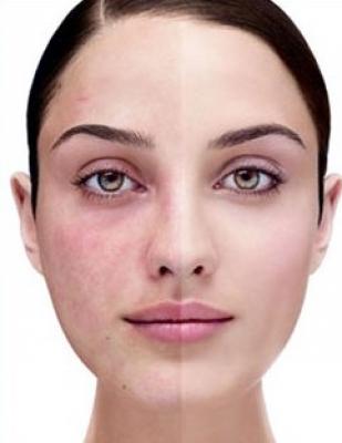 HYDRAFACIAL: ХРОМОТЕРАПИЯ помага срещу розацея и зачервявания на лицето от всякакъв характер