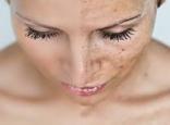 Възрастови петна по-кожата